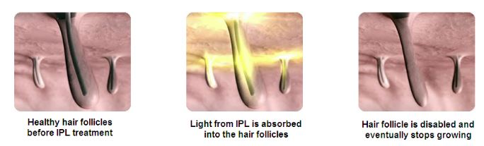 How IPL Hair Removal Works